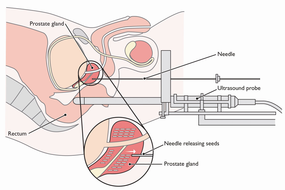 How Brachytherapy is Performed?