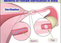 Benefits of Female Sterilization in India