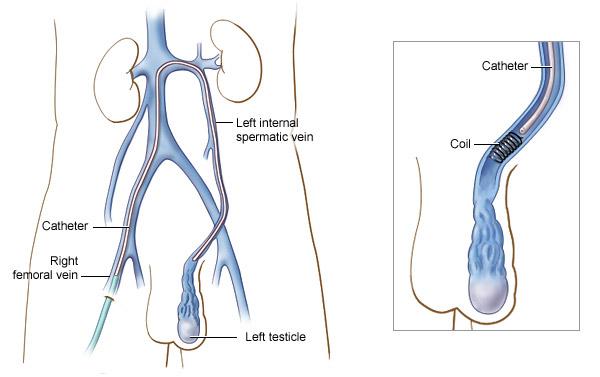 Varicocele Treatment Options
