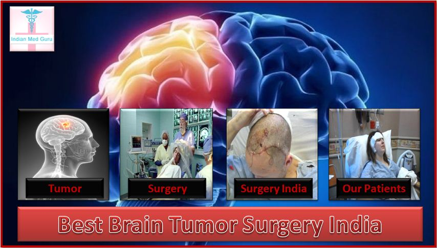 Brain Tumor Surgery in india, Brain Tumor Surgeon in India, Brain Tumor Hospital in India, جراحة استئصال ورم من الدماغ في الهند, الدماغ جراح ورم في الهند , مستشفى ورم في الدماغ في الهند,