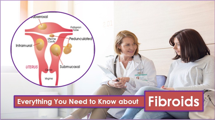Everything You Need to Know about Fibroids