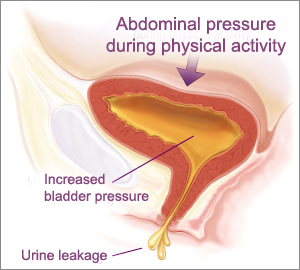 Urine Leakage Incontinence Bladder Surgery India