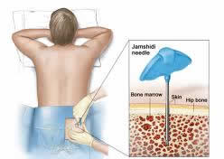 cost lymphoma treatment India, low cost lymphoma treatment India
