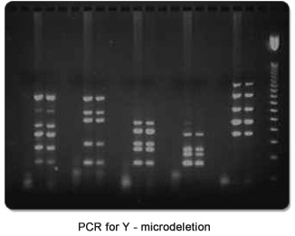 PCR for Y - microdeletion