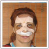 Rhinoplasty Surgery India