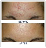 """an analysis of the surgical procedure of dermabrasion There is no worry of down time after microdermabrasion because it is a non-invasive procedure """"the california peel"""" locked beneath the exposed surface of the skin lies fresh lovely beautiful skin yearning to emerge."""